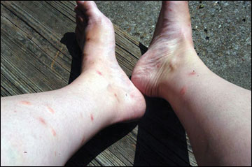 flea bite on person